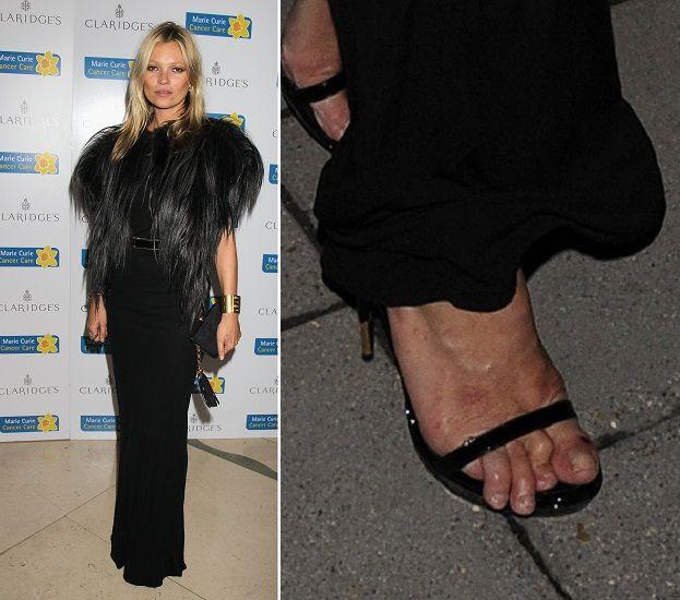 Kate Moss, cu degetele de la picioare distruse si deformate. Vezi imaginile care nu o ajuta in cariera de supermodel